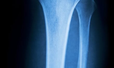 New billing model aims to improve care, lower costs for joint replacements