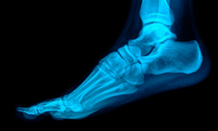 Study Finds Significant Savings With Outpatient Total Ankles